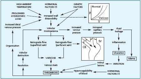 varicose veins treatment nice guidelines
